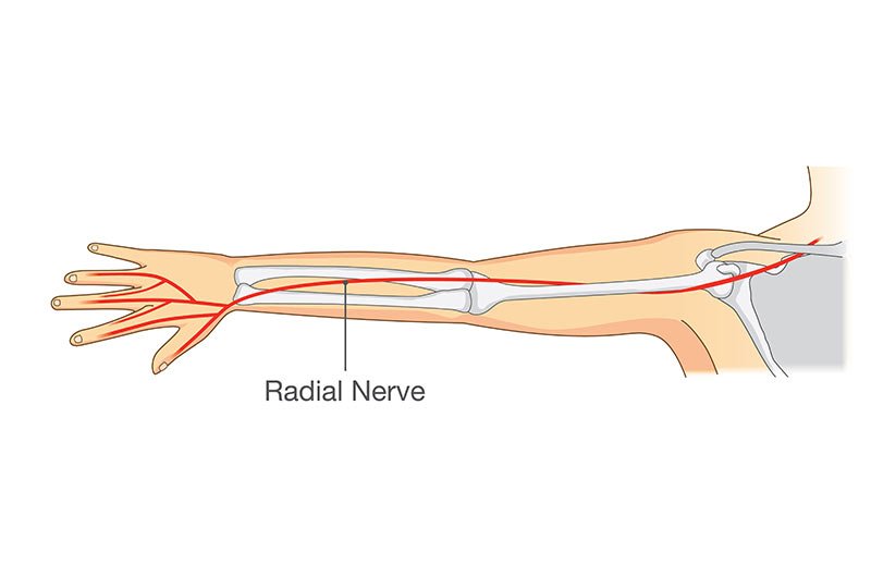 Radial Nerve Entrapment Op Dr Aatay Kemerl