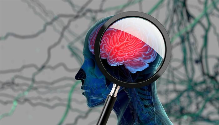 beyin-tumoru.jpg